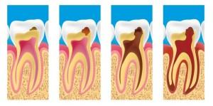 pedodent-terapie-dentara
